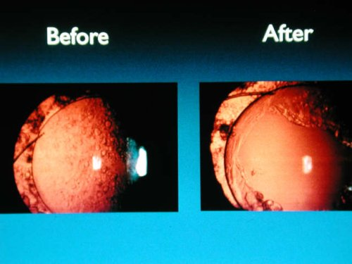 cataract surgery before and after
