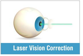 lasik-laser-vision-correction