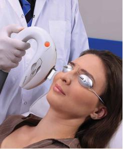 Lumenis IPL tampa treatment dry eye